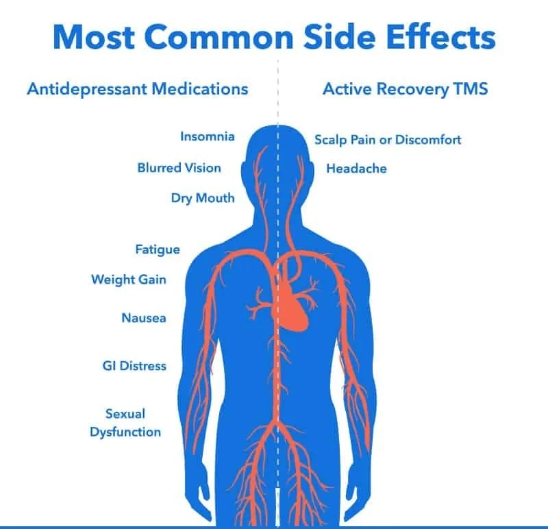 antidepressant medications vs tms